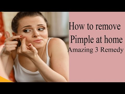 How To Remove Acne Marks |  Age spots  | Dark Circles with 3 Ingredients 100 % works