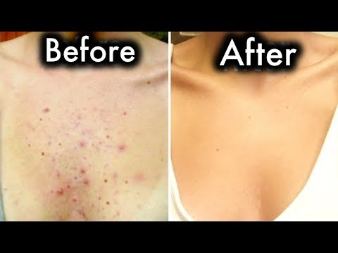 Get Rid Of Chest Acne In Few Days With These Home Remedies
