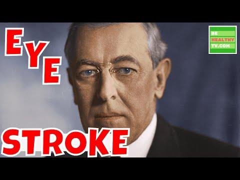 WHAT IS EYE STROKE  Eye Stroke Symptoms Risks and Treatment