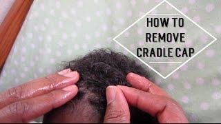 How To Remove Cradle Cap Wildhairmama