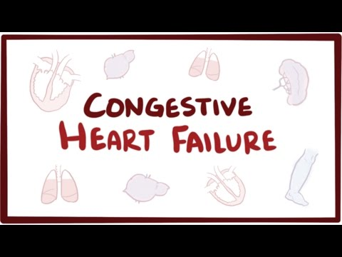 Congestive heart failure (CHF) - systolic, diastolic, left side, right side, & symptoms