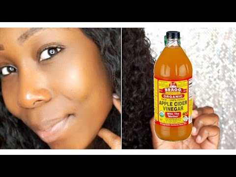 How To Get Clear Glowing Skin In 7 Days: DIY ACV Toner!