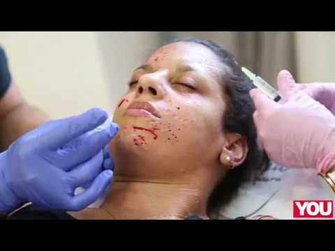 This is what getting a Vampire Facial is really like