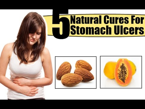 Stomach Ulcer | Home Remedies for a Stomach Ulcer