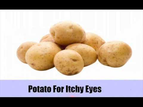 Top 11 Home Remedies For Itchy Eyes