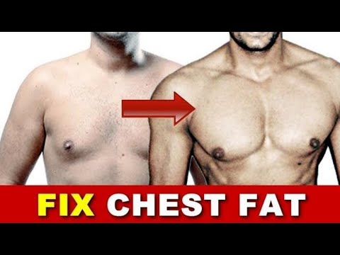 How to get rid of Man Boobs (Gynecomastia) | Reduce Chest Fat | Fitness Rockers