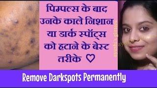 Pimple Ke Daag Kaise Mitaye In Hindi Videos 9videos Tv
