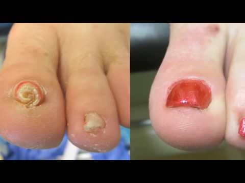 This is How You Can Remove an Ingrown Toenail Without Surgery