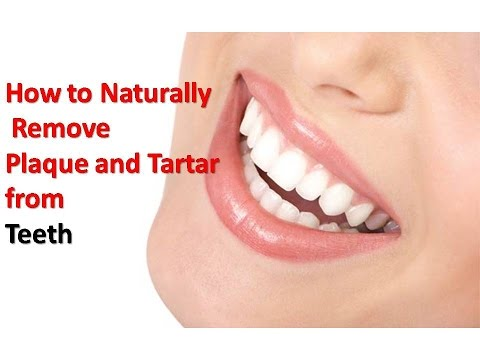 How To Get Rid Of Plaque & Tartar On Teeth At Home