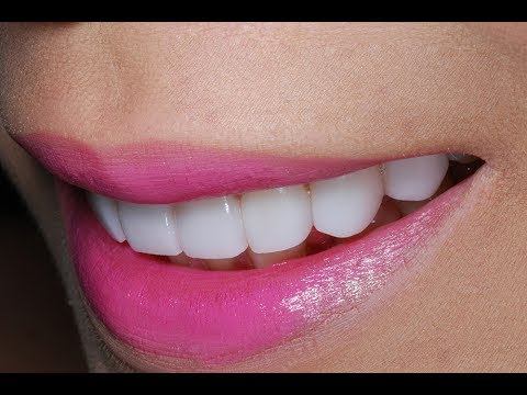 Video of Dental Veneers Procedure To a Young Patient at Cosmetic Dental Associates