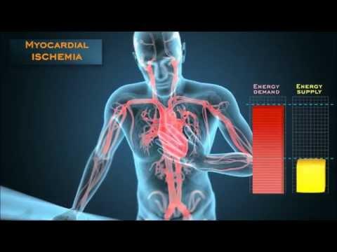 Understanding the energetic mechanisms that cause angina pectoris