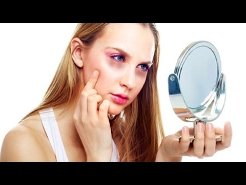 How To Get Rid Of Dark Circles Under Your Eyes.