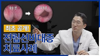 전립선비대증, 수술 전/후 결과 최초 공개!