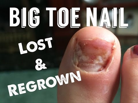 Big Toe Nail Loss and Re Growth Over 8 Months.