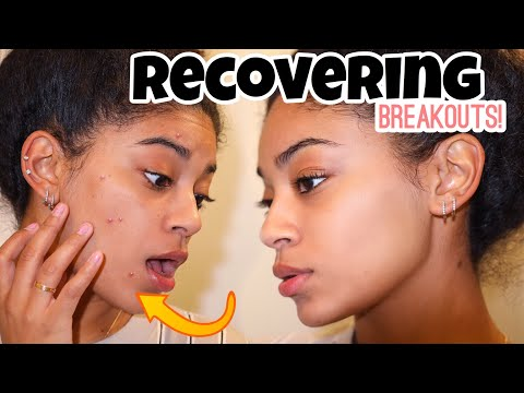 How To Recover Skin After Breakouts | jasmeannnn