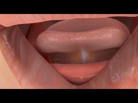 Posterior Tongue Tie Surgery