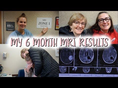 My 6 Month MRI Results
