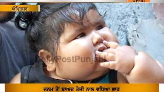 Amritsar : 8 months baby has 40 kg weight  | Daily Post Punjabi |