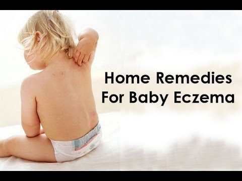 How to Cure Eczema for Babies - Eczema Home Treatment for Babies