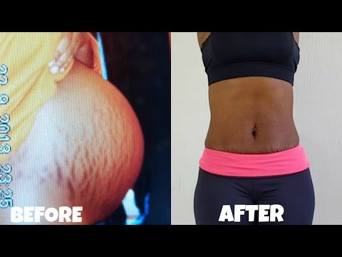 How To Get Rid Of Stretch Marks FAST