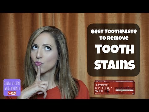 Remove Teeth Staining