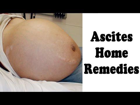 Ascitic Fluid Treatment With Home Remedies By Ayurveda Expert Sachin Goyal @ ekunji.com