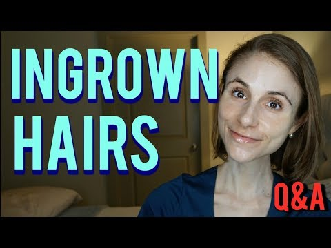Ingrown hairs: how to get rid of them & skin care tips| Dr Dray