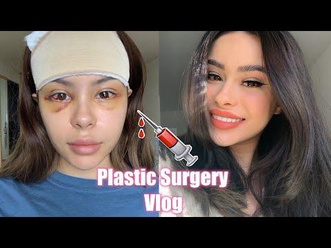 Xxx Mp4 I Got Plastic Surgery In Korea Part 1 3gp Sex