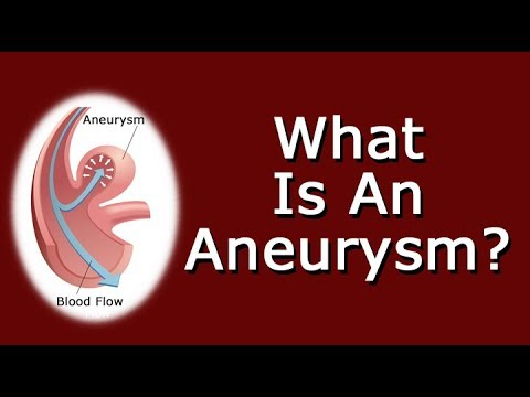 What Is An Aneurysm?