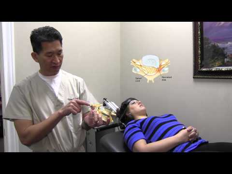 Neck Pain & Neck Disk Herniation Treatment by Dr. James Le, Herniated Disk Specialist & Chiropractor