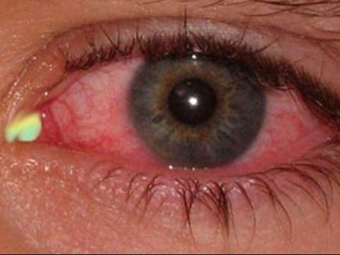 HOW TO CURE AN EYE INFECTION IN 24 HOURS!Natural Home Remedy for Pink Eye & Eye Pain