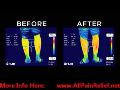 How PowerStrips Work|All Pain Relief|Arthritis|Fibromyalgia|Back Pain|