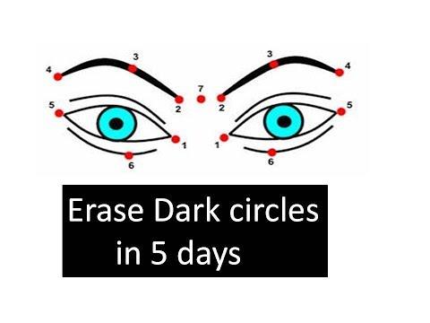 Remove  Dark circles in 5 DAYS | 5 MIN MASSAGE |