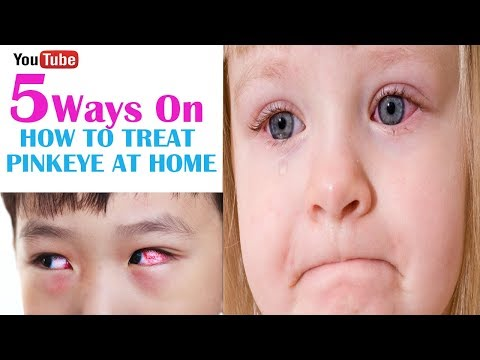 How To Treat Pink Eye At Home | Home Remedy For Pink Eye - Pink Eye Remedies