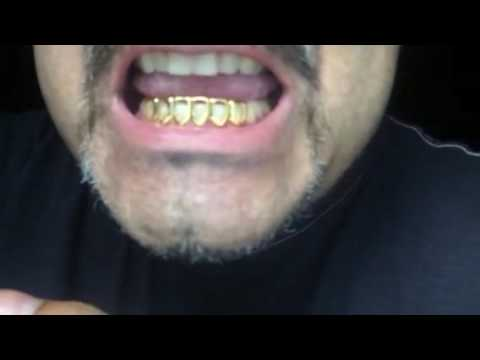 Fitting 6 Open Face Teeth Grillz