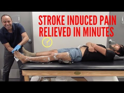 Stroke Induced Leg Pain Relieved Before You Know It!