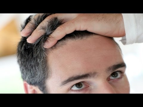 Good Candidates for Hair Transplant   Thinning Hair