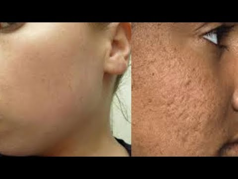 HOW TO SHRINK CLOSE LARGE OPEN PORES PERMANENTLY IN 10 MINUTES