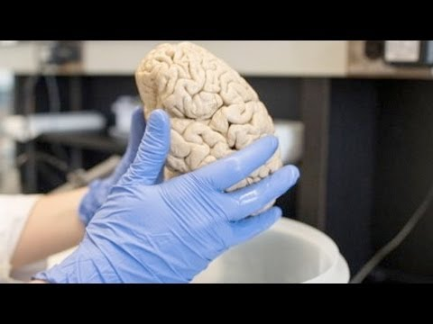 Mini Brains Grown With Stem Cells