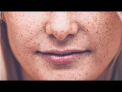 Skin Cancer and Melanoma: New Screening Guidelines