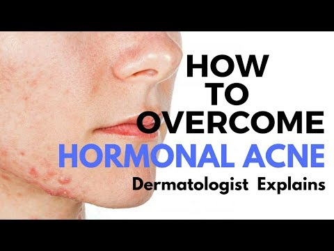 Skin Care Tips- Treating HORMONAL ACNE