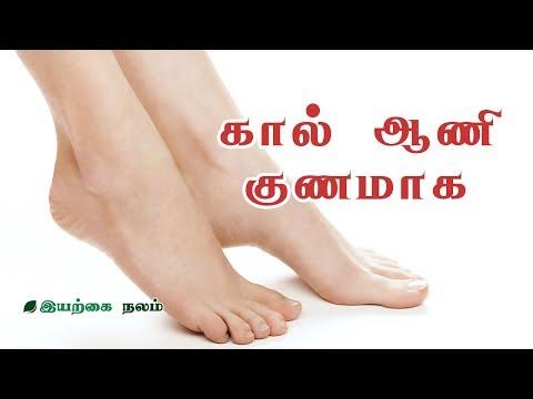 கால் ஆணி மருத்துவம் | How to Remove Corns | Kaal aani Treatment in Tamil