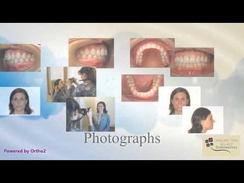 Intro Part 4 - Orthodontic Records - Wellington Village Orthodontics