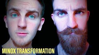 Week 11 - Minoxidil Beard Journey - PakVim net HD Vdieos Portal