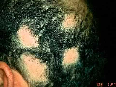 Diagnose the type of hair loss before hair loss remedy and treatment