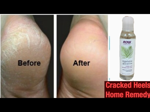 How to get rid of Cracked Heels Fast Using Natural Home Remedies