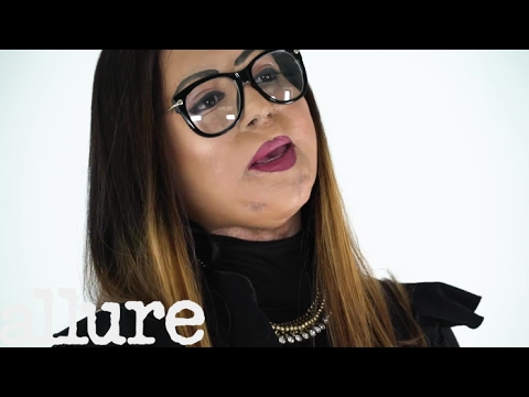 """One Acid Attack Survivor on How She Learned to Accept Her """"Stolen"""" Face 