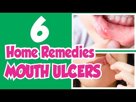 Mouth Ulcers: 6 Home Remedies To Get Rid Of Ulcers On The Mouth