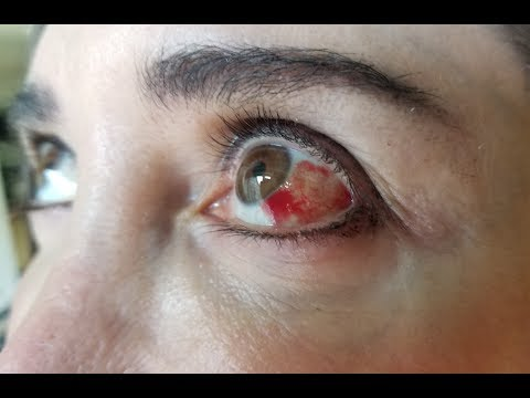 What Causes Blood in the Eye?