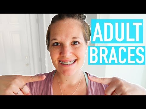 GETTING READY TO GET MY ADULT BRACES OFF! BRACES UPDATE